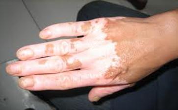 导致泛发型白癜风久治不愈的原因有哪些