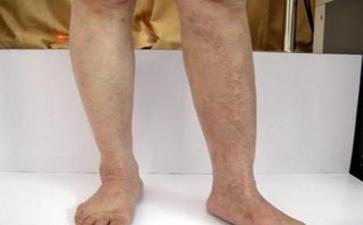 腿上有小白点怎么回事