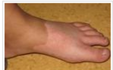 肢端型白癜风疾病复发的因素有哪些